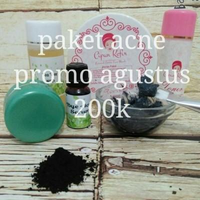 paket-acne